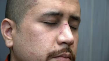This Feb. 27 photo released by the Florida State Attorney's Office shows George Zimmerman, who shot and killed Trayvon Martin, with injuries to his nose. The photograph was among a trove of e