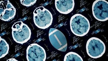 Football among brain scans.