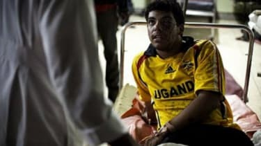 An American injured in the Uganda blasts.