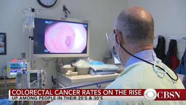 Colorectal cancer is on the rise for people in 20s and 30s
