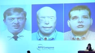 A slide showing Patrick Hardison before his face was burned, after his face was burned, and after his face transplant.
