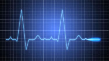 Woman survives 45 minutes without a pulse
