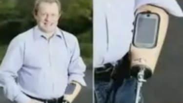 Trevor Prideaux's prosthetic device