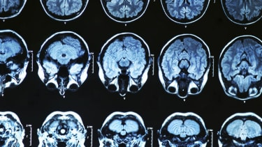 Study will attempt to see if early intervention can block Alzheimer's disease