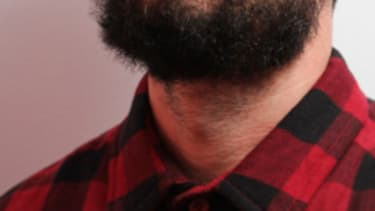 The patchy-bearded hipsters who get facial-hair transplants