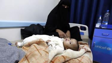 A Yemeni baby suspected of having cholera.