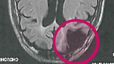 Cecil Clayton's brain scan.